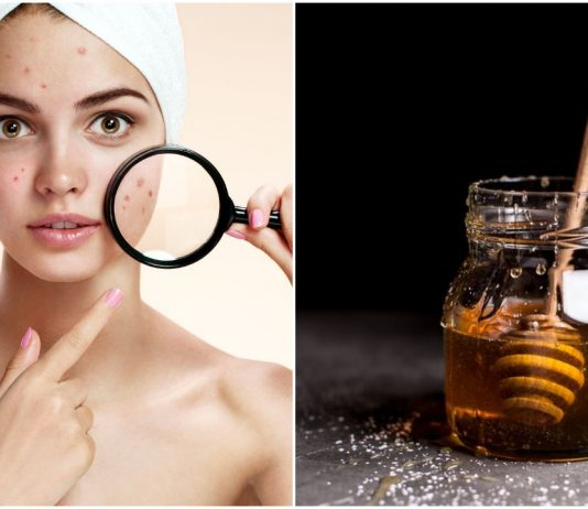 acne treatment, fight with acne